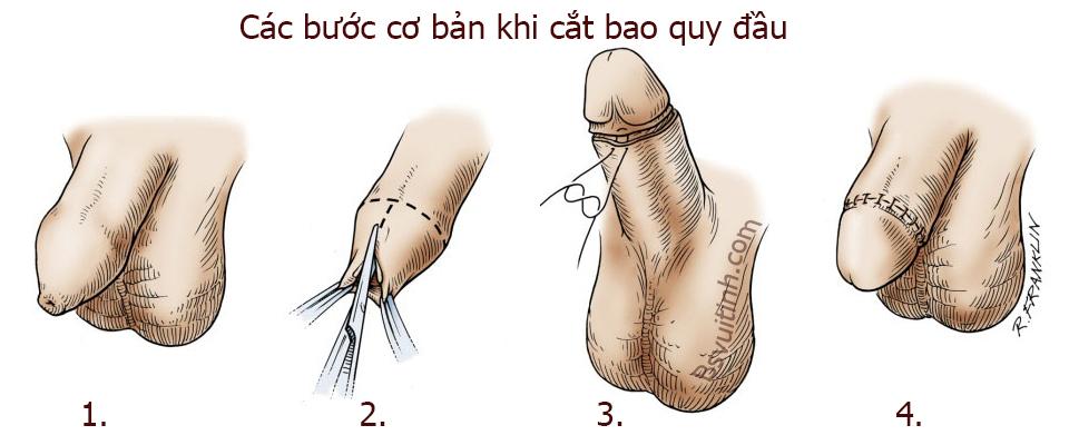 cat-bao-quy-dau