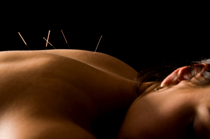 The latest research regarding acupuncture and PCOS
