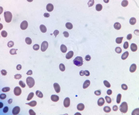 macrocytic anemia by sachin kale