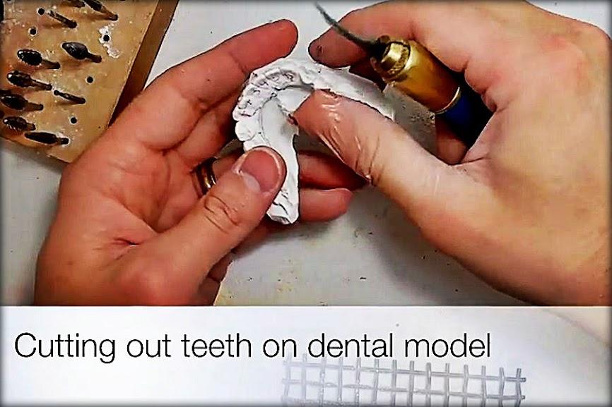 dental-model