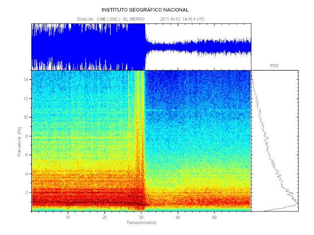 Imagen en la que se aprecia el descenso en la actividad del tremor.