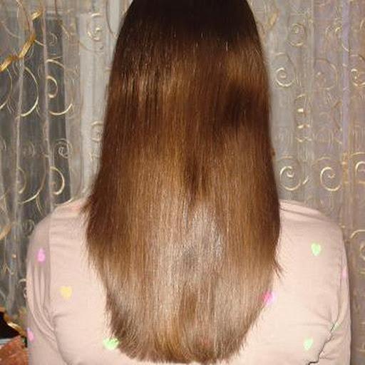 czy sucha skóra głowy powoduje wypadanie włosów