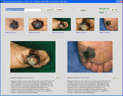 YSP Dermatology Image Database 1.35