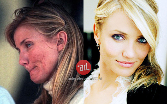Photos of Cameron Diaz with acne