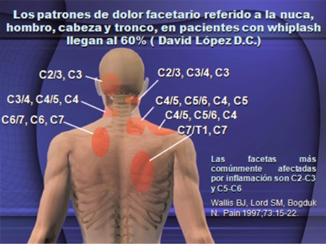 Los preparados a la hernia intervertebral