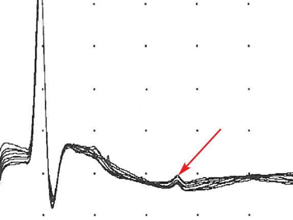 An F wave (arrow) is demonstrated after the M wave and the stimulation artifact