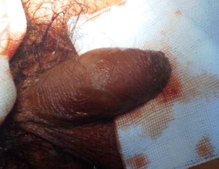 Hình ảnh hẹp bao quy đầu và dư da bao quy đầu khi bệnh nhân đến khám