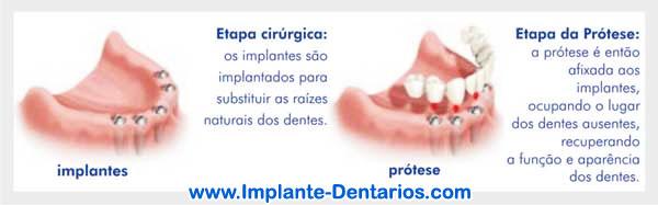 Como são feitos os Implantes Dentários