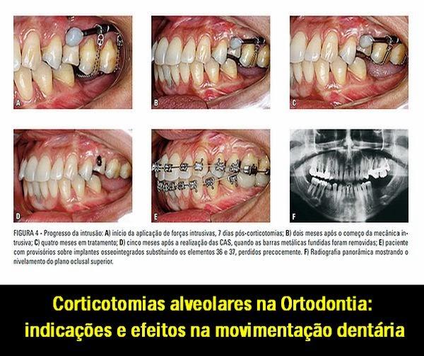Corticotomias