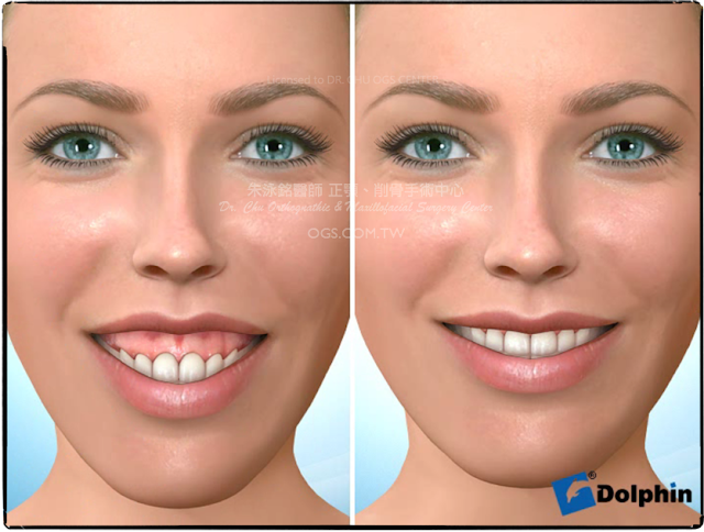 笑齦,長臉,臉長,正顎手術,長下巴
