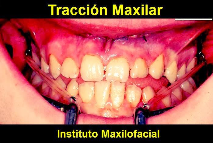 traccion-maxilar