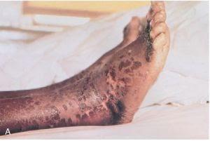 health: Skin manifestations of Pellagra
