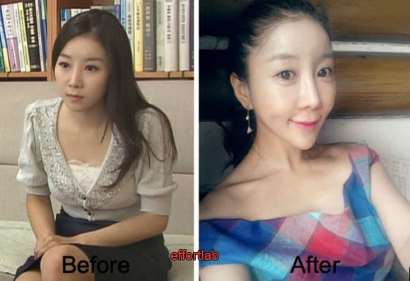 pembedahan-plastik-korea-selatan