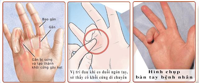 Nhận biết tình trạng sức khỏe tiềm ẩn của bạn qua 10 dấu hiệu trên bàn tay..3