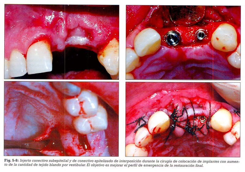 tecnicas-quirurgicas-periodontales