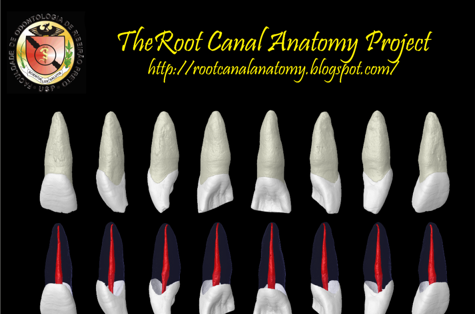 The Root Canal Anatomy Project Maxillary Central Incisor