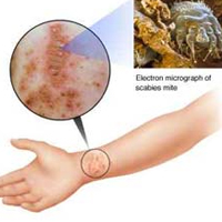 Natural Ayurvedic Remedies For Scabies post image