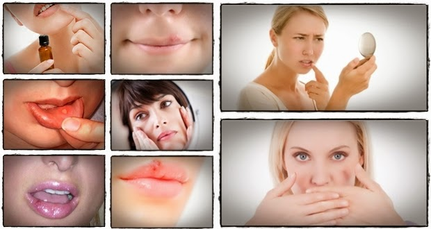 Herpes simplex medication side effects