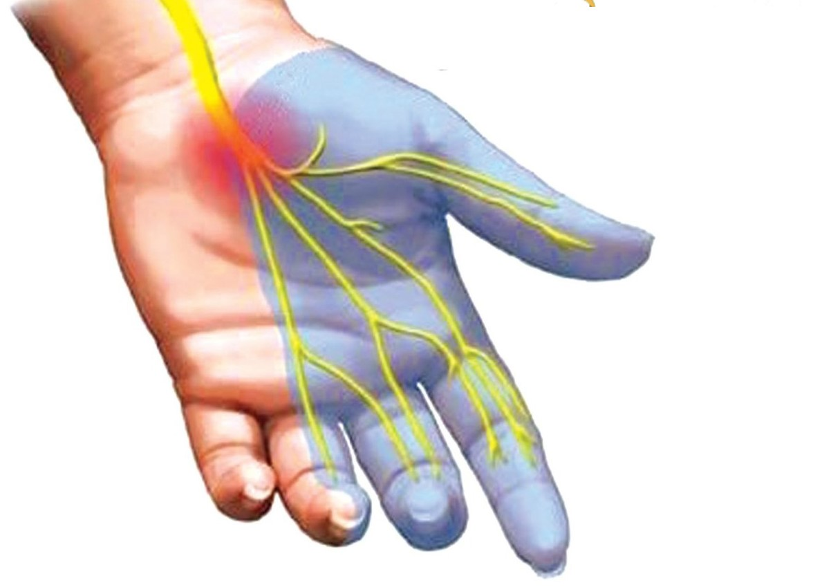 Minh hoạ dây thần kinh giữ bị chèn ép gây tê các ngón 1, 2, 3 và nửa ngón 4 (ngón nhẫn)