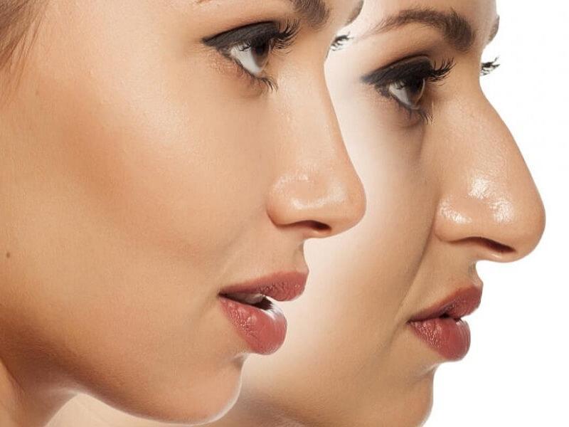 عوارض عمل بینی