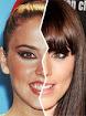 Famosos antes y despues de operarse los dientes