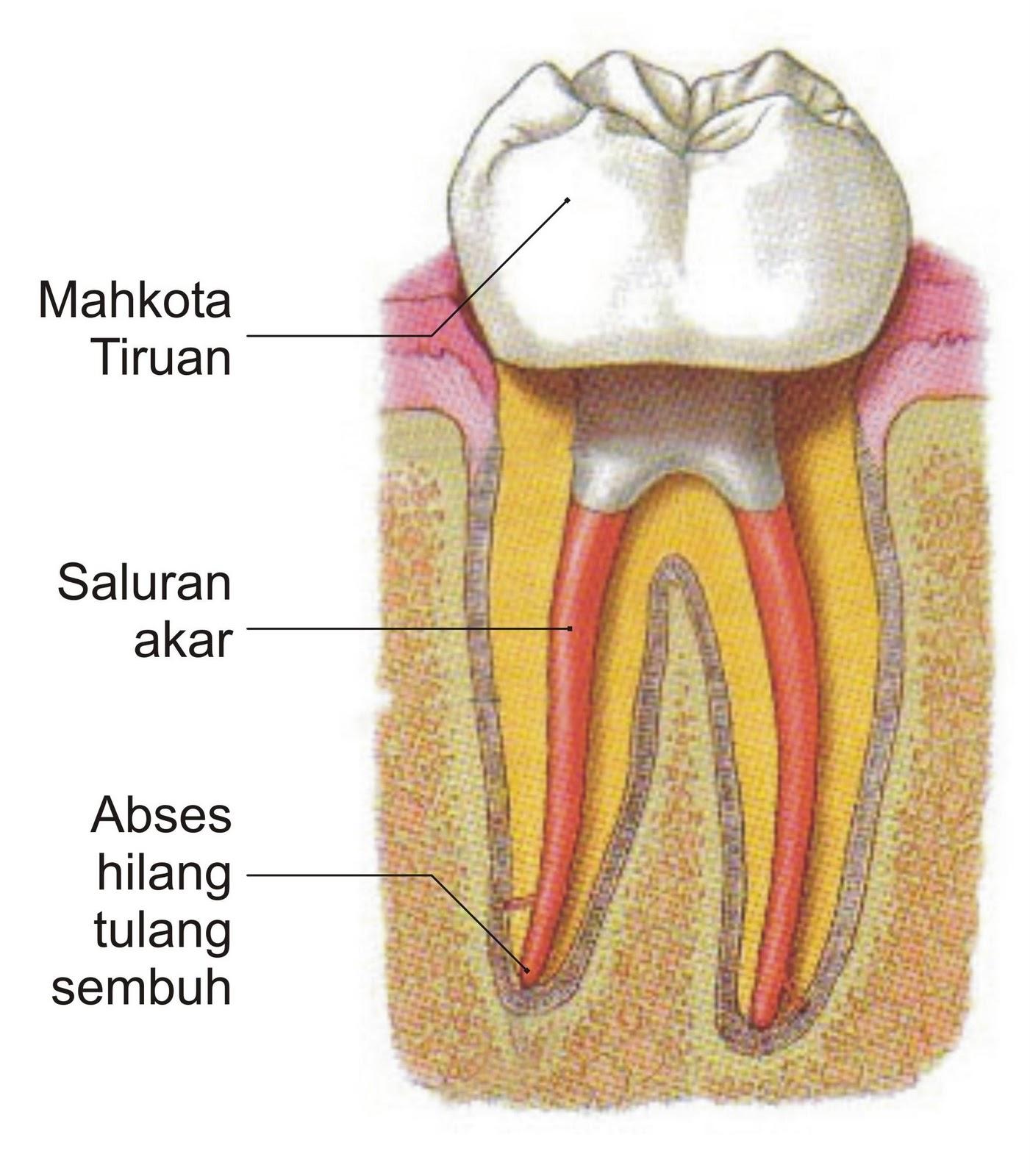 Kebiasaan Sepele Penyebab Gigi Berlubang Yang Harus Diwaspadai