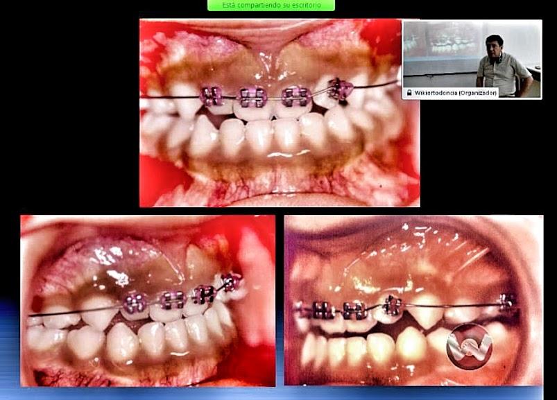 ortodoncia-clase-III.jpg