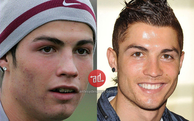 Photos of Cristiano Ronaldo with acne