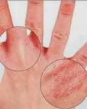 Cara Menyembuhkan Alergi Kulit