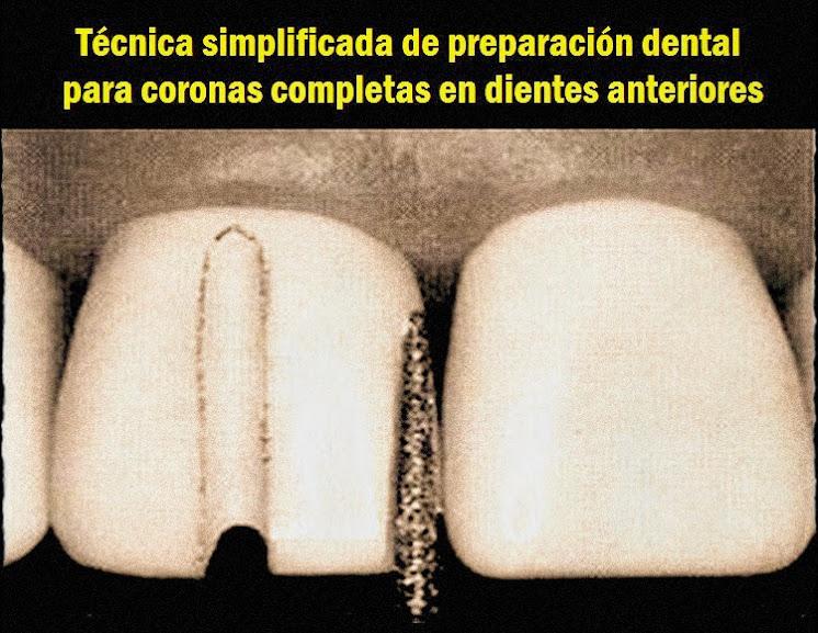 tallado-dental