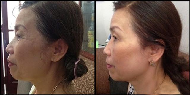 Cô Vân - 63 tuổi (Thái Hà, Đống Đa, Hà Nội) trước và sau khi sử dụng 4 tuần
