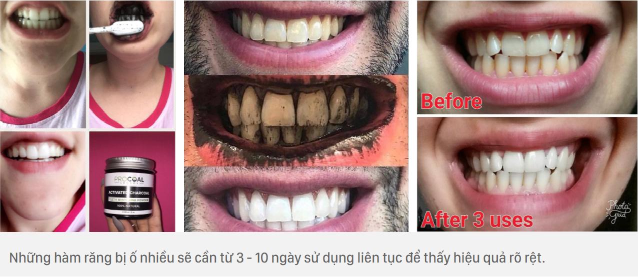 Bột trắng răng than hoạt tính Procoal