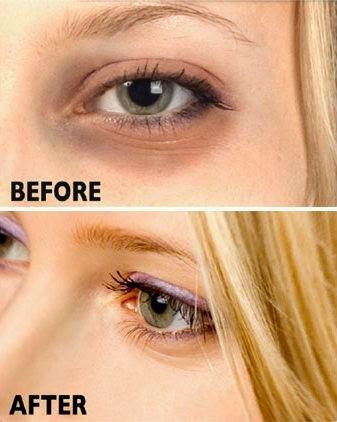 Health Tips: How to Get Rid of Dark Circles