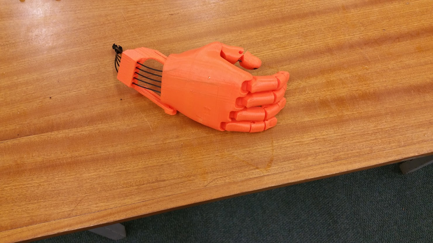 A prosthetic hand, made by Morgan