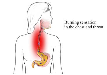 2011 03 01 archive on gastroesophageal reflux disease diagram