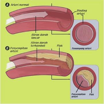 Penyebab & Pengobatan Kolesterol Tinggi