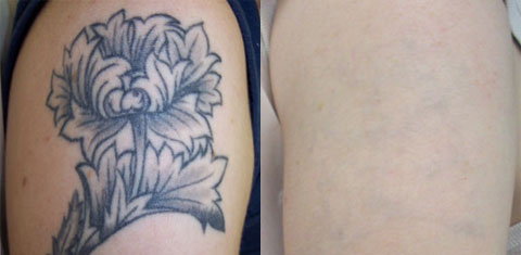 Dr. TATTOFF - Laser Tattoo Removal and Laser Hair Removal - Houston, TX