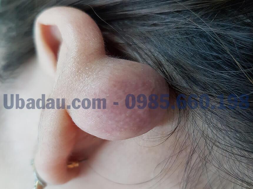 U sụn vành tai thường gặp sau bấm lỗ tai