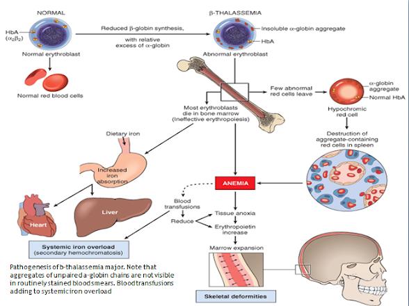 obat tradisional penyakit thalasemia