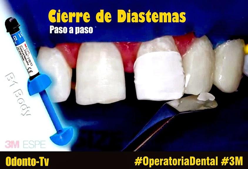 diastemas-dentales