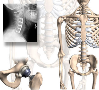 Orthopedics Presentations 1 - OAR