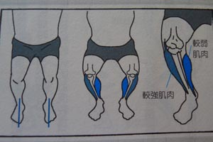 膝蓋向內併攏的情況
