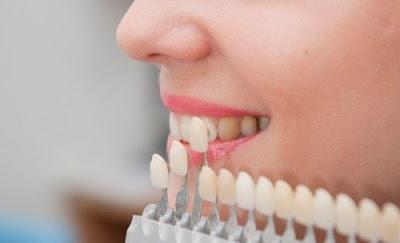 Có nên đi tẩy trắng răng hay không