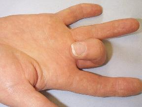 Hình ảnh đặc trưng của ngón tay người bị ngón tay cò súng