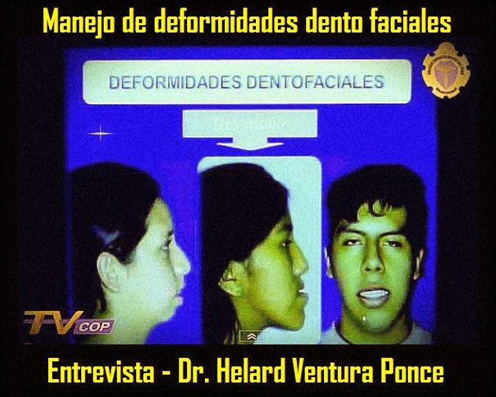 deformidades-dento-faciales
