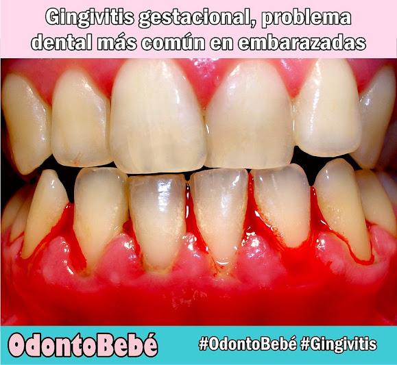gingivitis-gestacional
