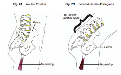 Lower Back Neutral Position and Forward Flexion 45 Degrees