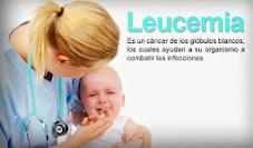 Leucemia: Causas, síntomas y tratamiento.
