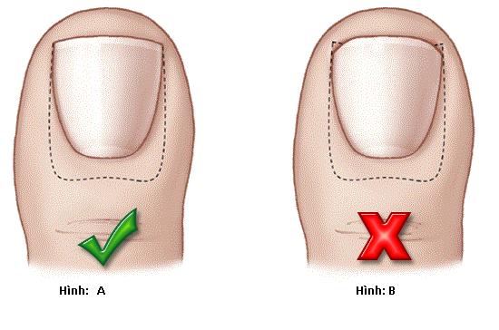 Chăm sóc móng chân đúng cách