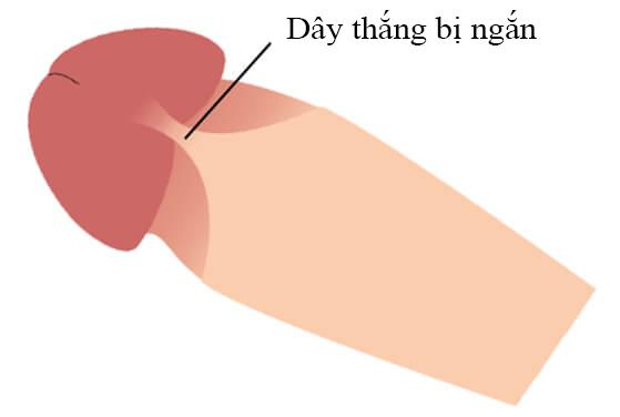 Ngắn dây thắng dương vật thường gặp ở nam giới